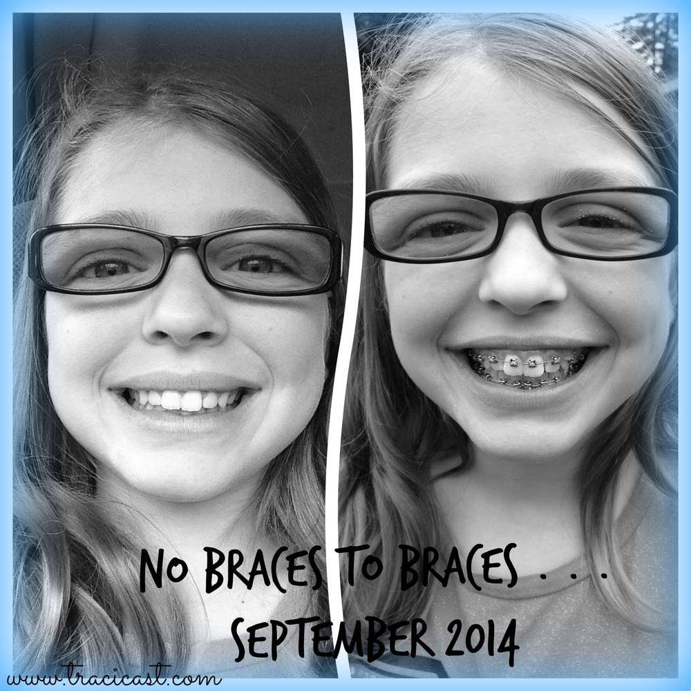 BJ braces