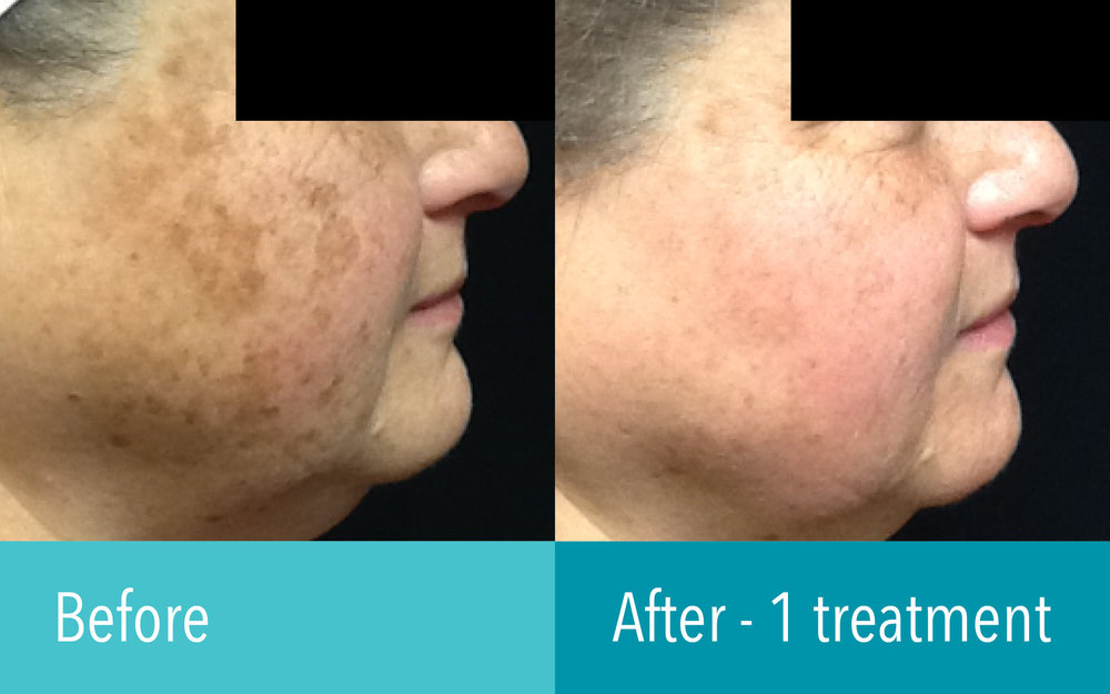 Photo courtesy of The Laser Cosmetic Center at Dermatology Associates