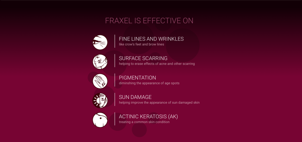 Fraxel summary.png