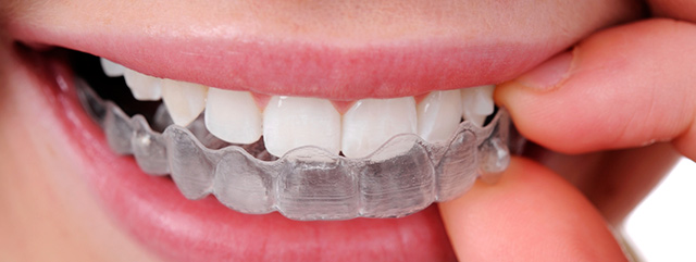 invisalign-orthodontics-create-beautiful-smiles-abc-dental-care.jpg