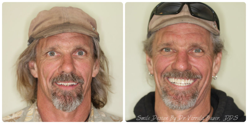 neal face before and after.jpg