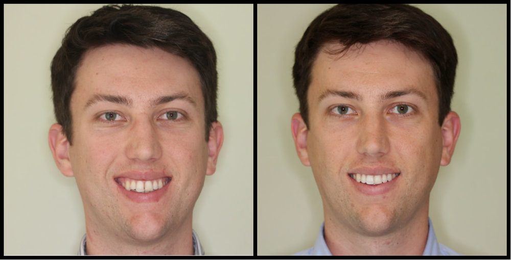 tyler face before after invisalign.jpg