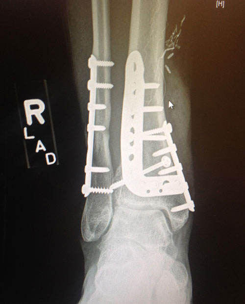 Result of a horseback riding accident in 2010.  X-ray taken in January, 2014