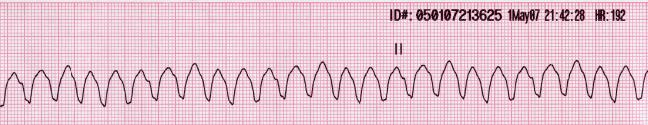 Pulseless Ventricular tachycardia (V-tach or VT) is a type of tachycardia, or a rapid heartbeat, that starts in the ventricles. Ventricular tachycardia can be classified based on its morphology: Monomorphic presents with all the ECG complexes match each other and Polymorphic has beat-to-beat variations in morphology.