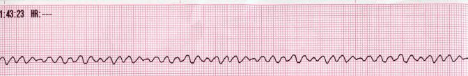 Ventricular fibrillation (V-fib or VF) is a condition in which there is uncoordinated contraction of the cardiac muscle of the ventricles in the heart, making them quiver rather than contract properly. Ventricular fibrillation has been shown to be the most commonly identified arrhythmia in cardiac arrest patients.