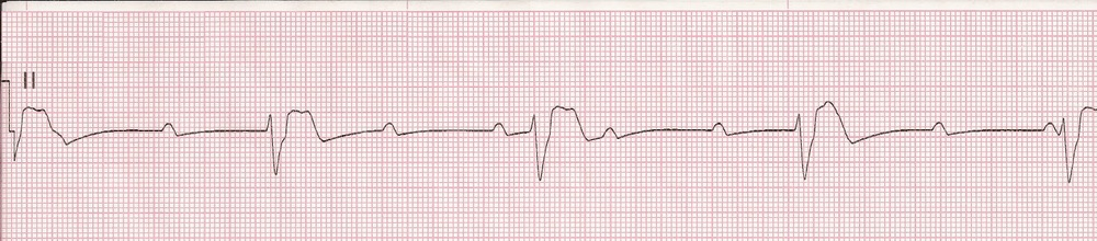 3rd Degree HB (Complete Heart Block)