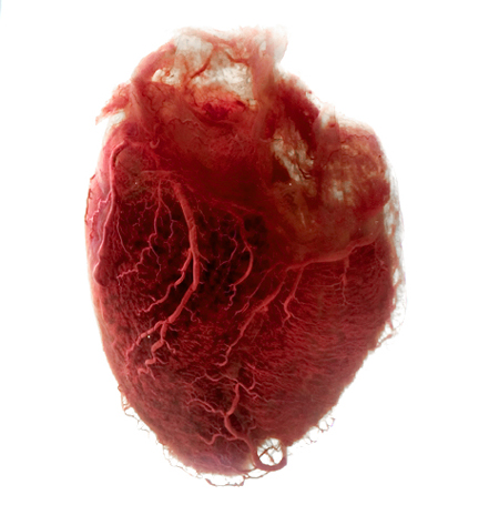 We LOVE with this organ.. or so we think(feel).  This human heart has had the fat and extra tissue removed, leaving pure angel-hair blood vessels to make up its shape.