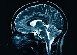 brain III.jpg