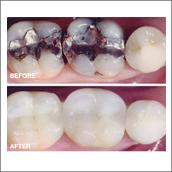 Composite Fillings   When a tooth has a cavity, resin composites restorations (a tooth-colored material) is used to restore teeth.