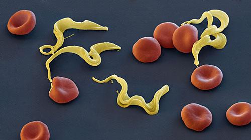 Trypanosoma brucei