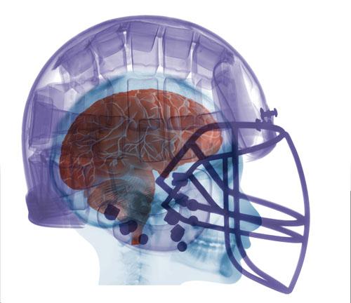 Football Helmet X-ray