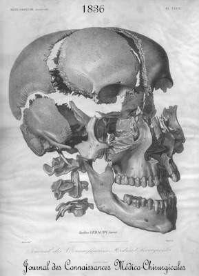 The cranial bones.