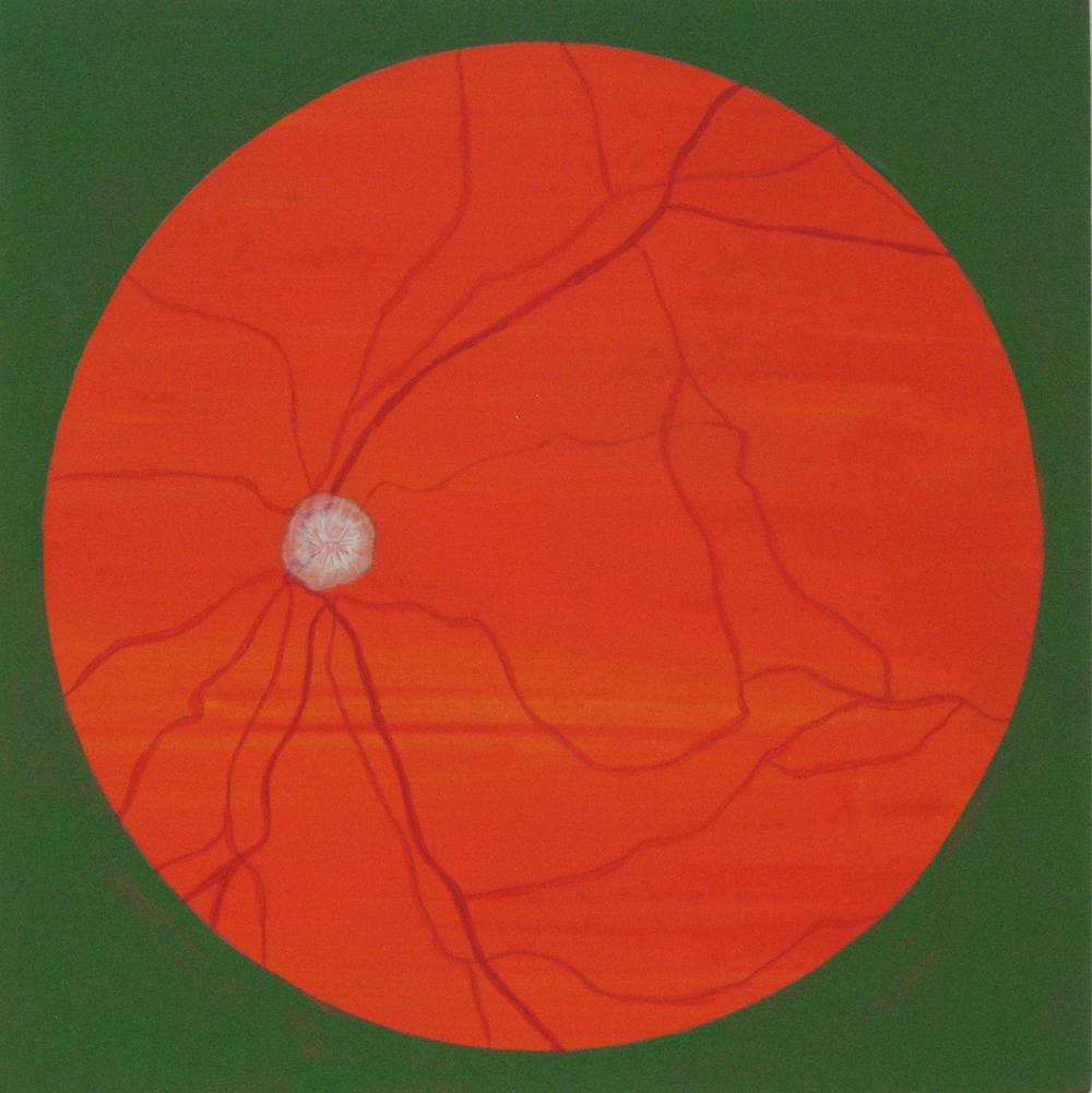 You've got a lot of Optic Nerve