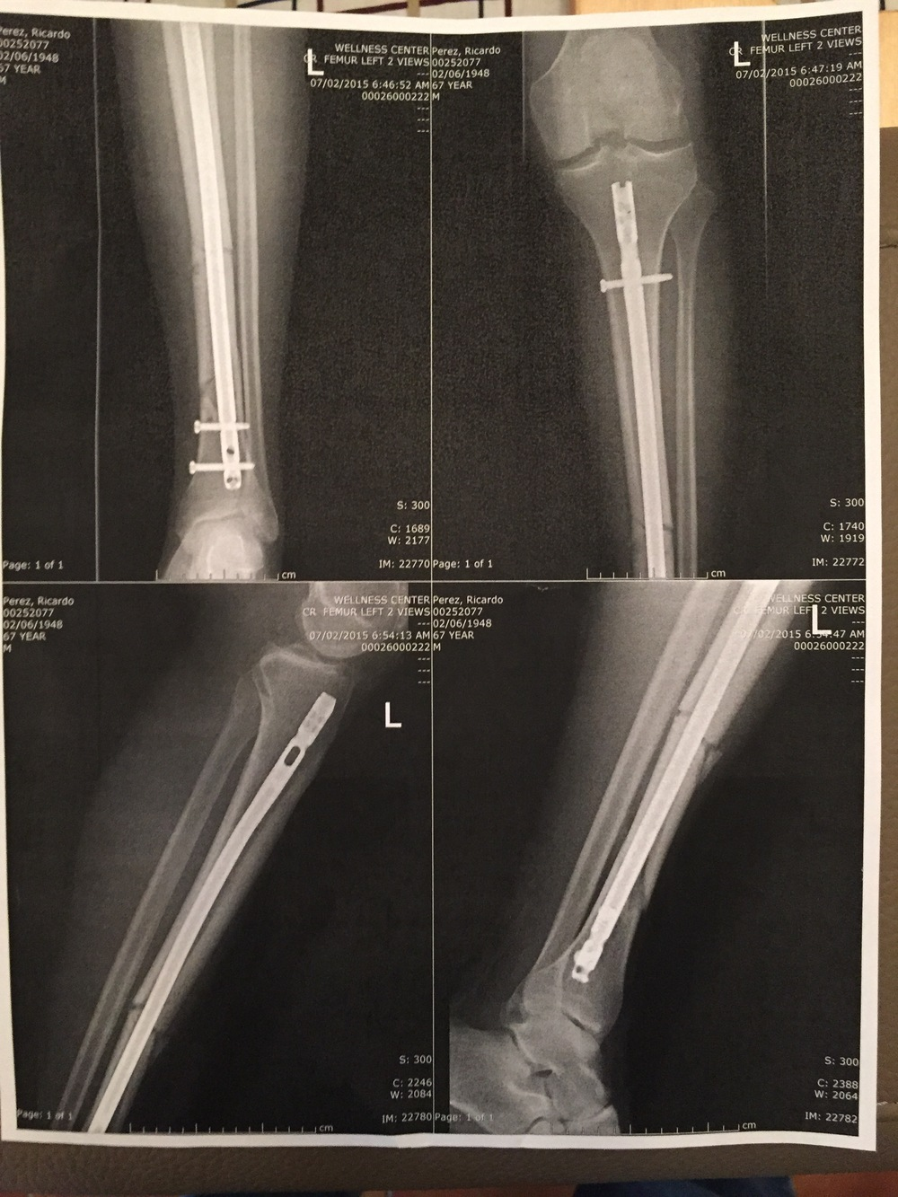 Here's my left leg, broken below the knee. The drove a nail down the bone and tuned it with those side screws. No more casts. Doctor said it weren't for my pelvic area I could walk on it immediately.