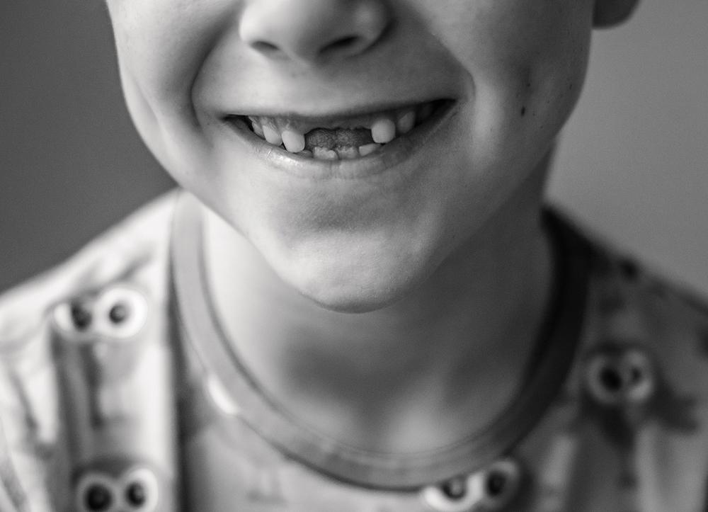 kind-ohne-schneidezähne
