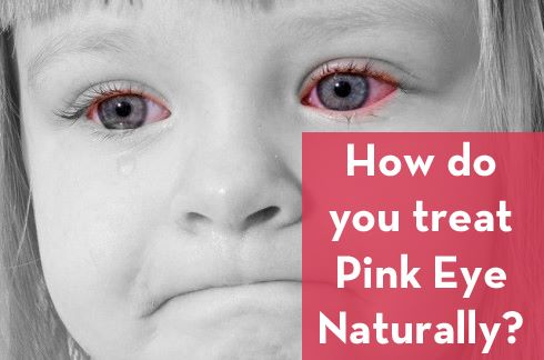 Treating Bacterial Pink Eye Naturally