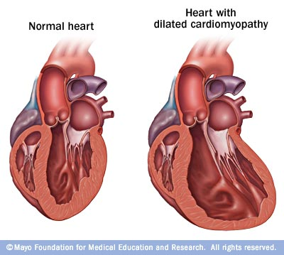 cardiomyopathy facts — the share cardiomyopathy registry, Skeleton