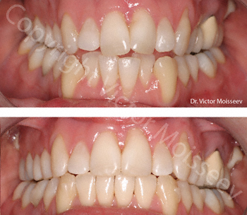 invisalign before and after2 small.jpg