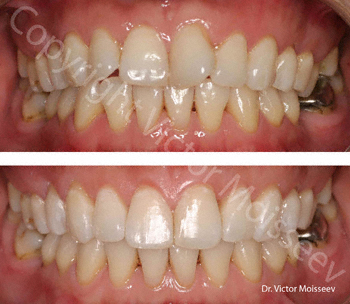 Invisalign Before (top), After (bottom)