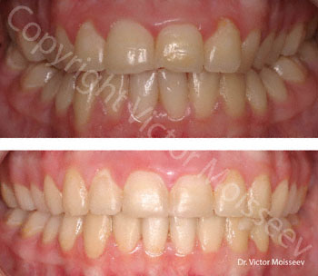 Braces Before (top), After (bottom)