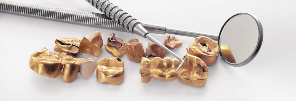 Image of an assortment of karat gold jewelry, which Specialty Metals can recycle and refine for the best prices for individuals and businesses.