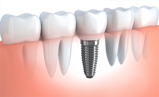 implant-diagram_320.jpg