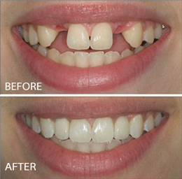 Dramatic Dental Implant Results
