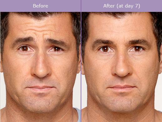 Botox6.jpg