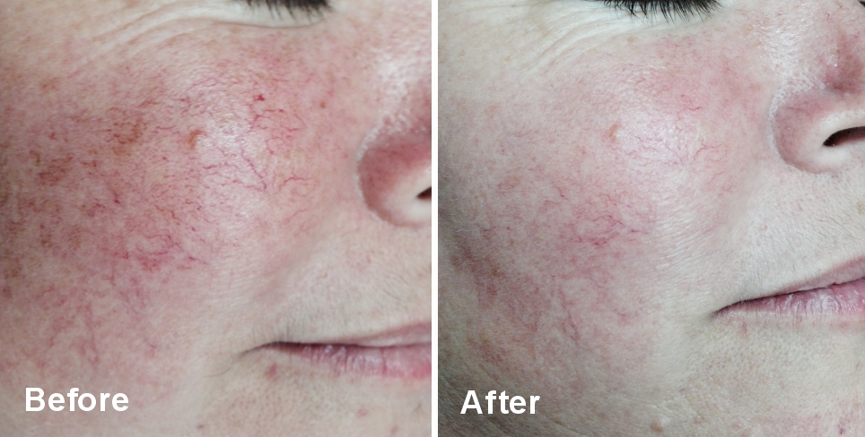 Lumecca IPL Treatments After a Series of 3