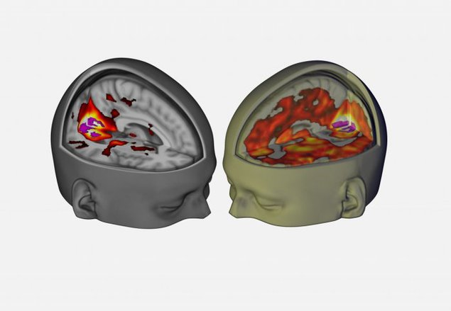 "The areas that contributed to vision were more active under LSD (right), revealing a more ""unified"" brain. Picture courtesy of the Beckley Foundation."
