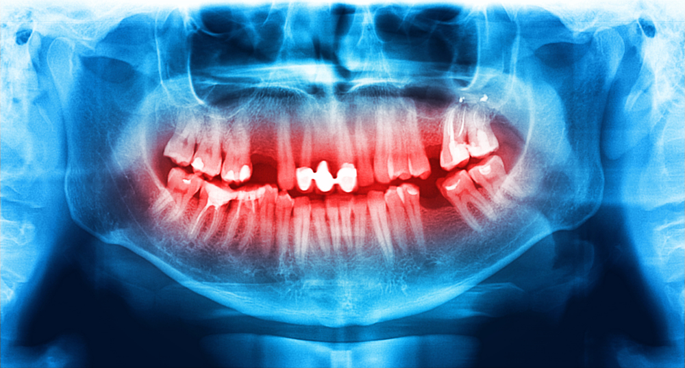 Our San Francisco dental office offers the latest technology including digital x-rays and in-office same day crowns