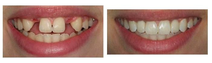 implant dentistry before and after