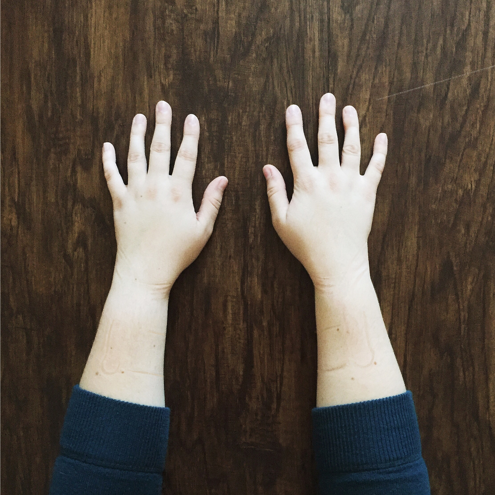 Taking care of your hands to prevent serious injury like carpal tunnel that can prevent you from following your dreams.