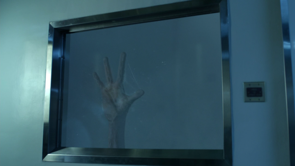 As Hugo Strange speaks to Peabody about Victor's tech, we see a deformed hand slamming against the glass window besides them. Keep in mind that Indian Hill has been presented as sort of the foreign planet where Gotham's more science-fiction or even supernatural villains might come from. So who does this hand belong to?