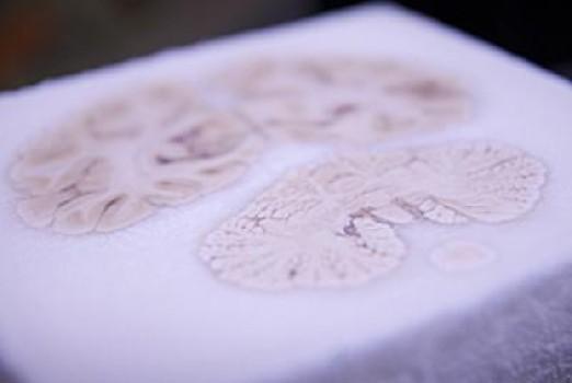 HM's Brain. Credit: UC San Diego School of Medicine