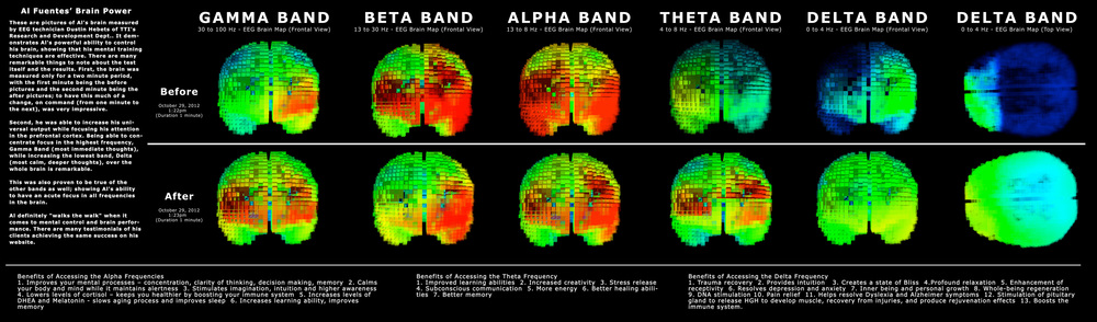 LOOK AT HOW HE WAS ABLE TO INCREASE HIS UNIVERSAL OUTPUT WHILE FOCUSING HIS ATTENTION IN THE PREFRONTAL CORTEX. BEING ABLE TO CONCENTRATE FOCUS IN THE HIGHEST FREQUENCY, GAMMA BAND (MOST IMMEDIATE THOUGHTS), WHILE INCREASING THE LOWEST BAND, DELTA (MOST CALM, DEEPER THOUGHTS), OVER THE WHOLE BRAIN IS REMARKABLE.    Benefits of Accessing the Delta Frequency  1. Trauma recovery 2. Provides intuition  3. Creates a state of Bliss 4.Profound relaxation 5. Enhancement of receptivity 6. Resolves depression and anxiety 7. Inner being and personal growth 8. Whole-being regeneration 9. DNA stimulation 10. Pain relief 11. Helps resolve Dyslexia and Alzheimer symptoms 12. Stimulation of pituitary gland to release HGH to develop muscle, recovery from injuries, and produce rejuvenation effects 13. Boosts the immune system.