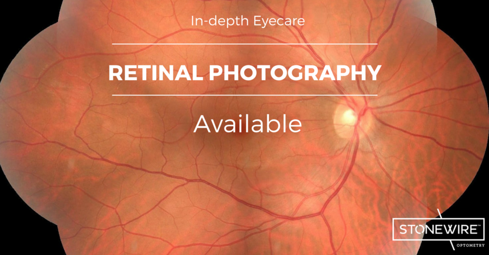High Definition Retinal Photography