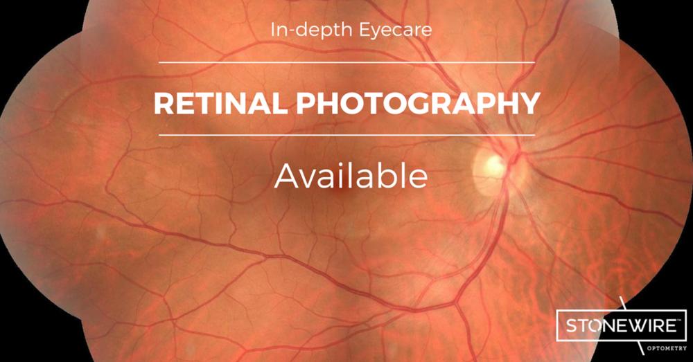 Photo of retina