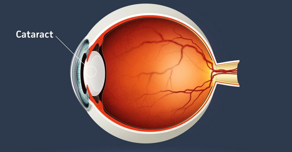 Stonewire Optometry - Eye Exams | Contacts | Emergencies-Blog-Your