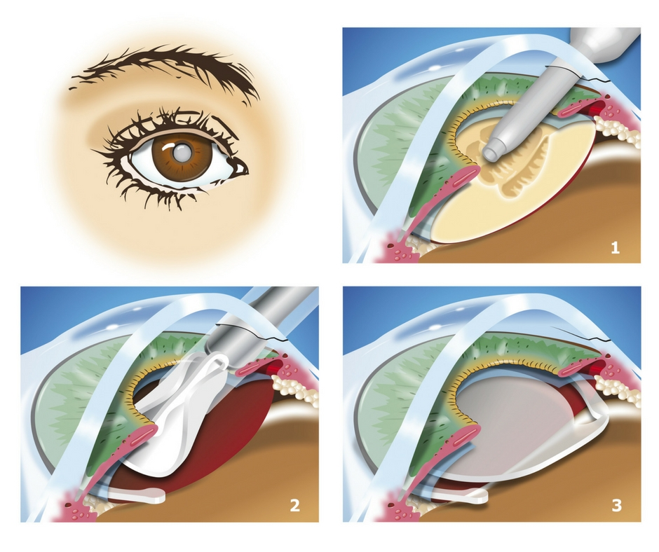4-part illustration showing the location of a cataract and how cataract surgery is performed by removing the lens structure through a clear corneal incision.