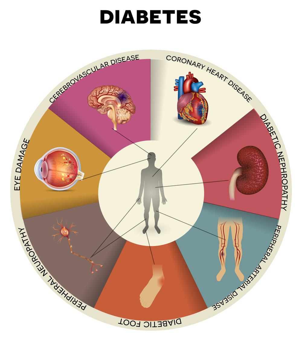 Diabetes medical complication wheel chart