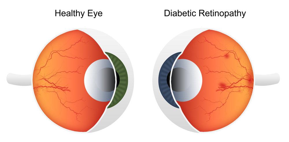 normal eye vs diabetic retinopathy eye