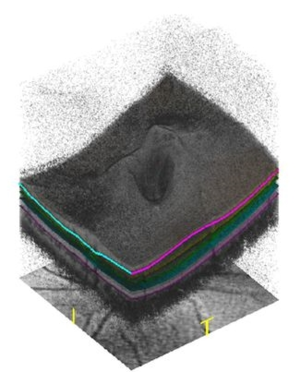 Three dimensional (3d) image of Optic nerve head of left eye using oct retinal imaging technology