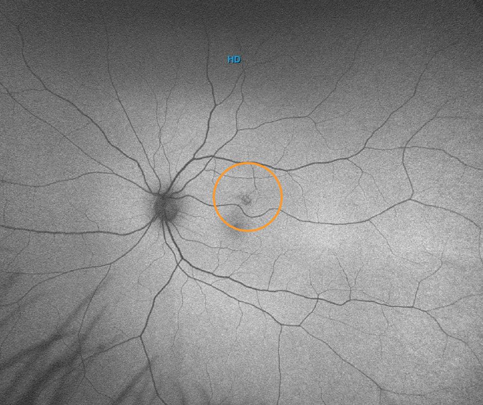 AF - autoflourencens Optos Wide-Field Retinal Imaging. (1).png