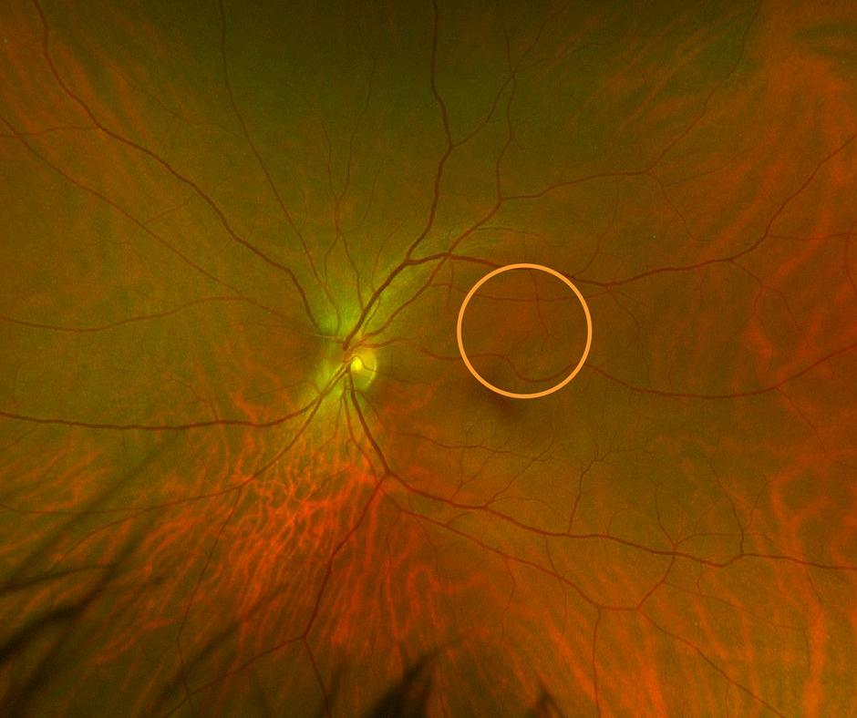 Regular retinal exam - misses this lesion.png