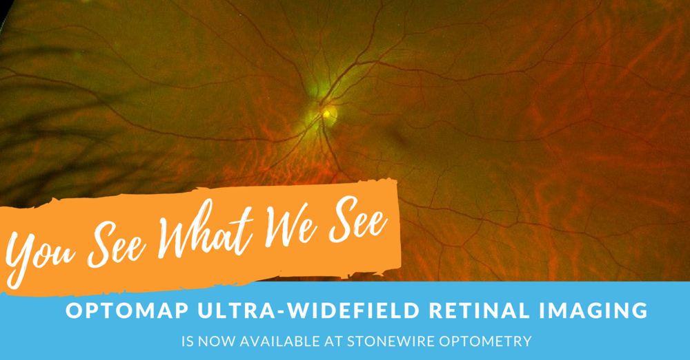 You see what we see - optomap ultra-widefield retinal imaging at Stonewire Optometry in Edmonton.png