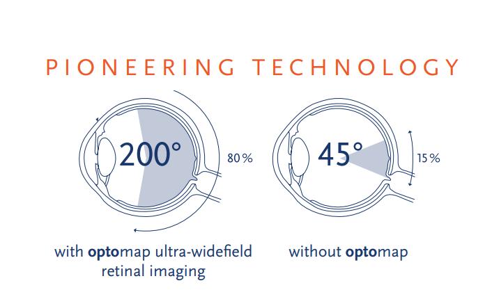optomap 200 degree image vs traditional retinal camera 45 degree image.png