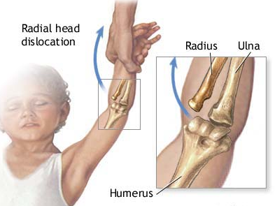 Nurse maid's elbow occurs when a child is pulled by the arm.