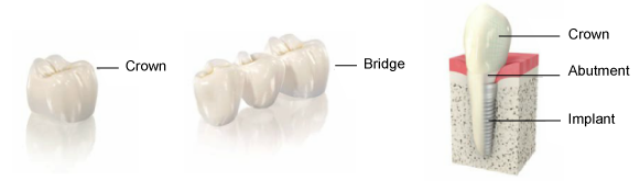 crown_bridge_implant.png