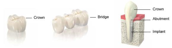 crown_bridge_implant.png